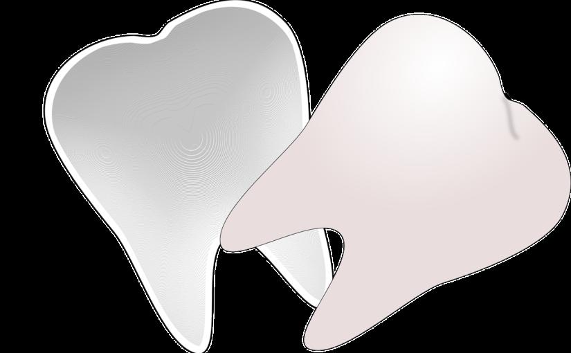 Prześliczne zdrowe zęby dodatkowo olśniewający prześliczny uśmiech to powód do dumy.
